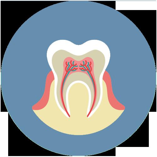 Endodontie / Wurzelkanalbehandlung